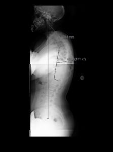 1 223x300 - 16 yo girl with progressive scoliosis despite bracing