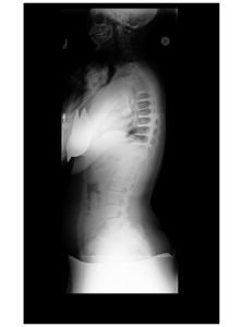 3 223x300 - 16 yo girl with progressive scoliosis despite bracing