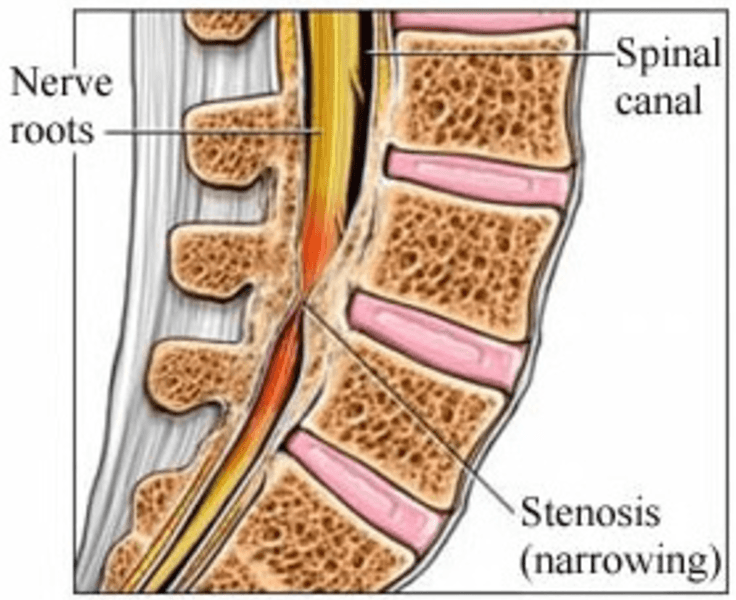 Spinal Stenosis Figure 1
