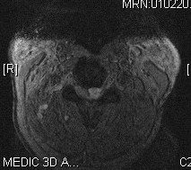 PGpreopaxialmri - 61 yo male with severe cervical stenosis and myelopathy