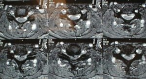 CM.mri .axial  300x163 - 53 yo male with cervical stenosis and myelopathy treated with anterior decompression and fusion