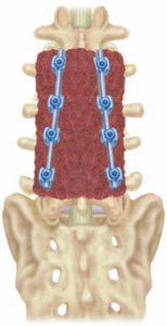 Vertebrectomy , spine surgeon delray beach, spinal stenosis treatment boca raton