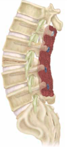 Pedicle Subtraction Osteotomy, spinal stenosis treatment boca raton