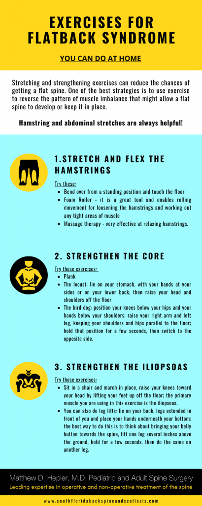 flat back syndrome exercises spine surgeon palm beach county 410x1024 - Exercises For Flat Back Syndrome - Infographic